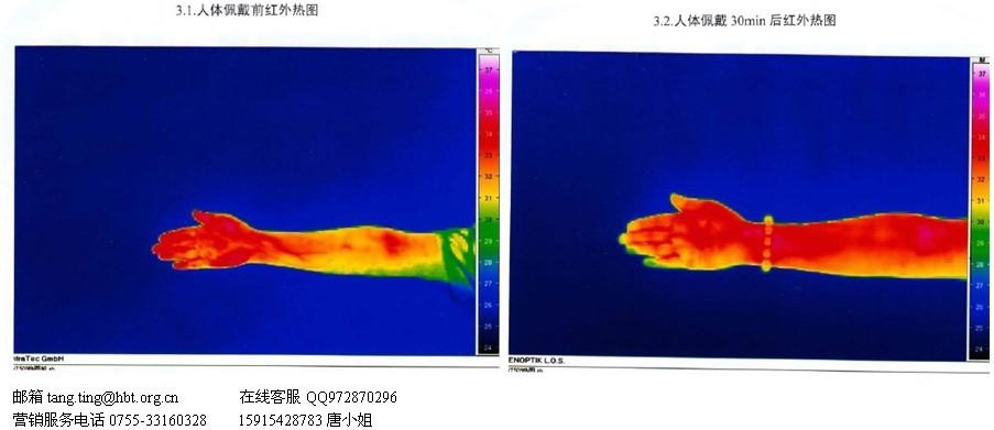 红外热图测试/人体使用前后热图